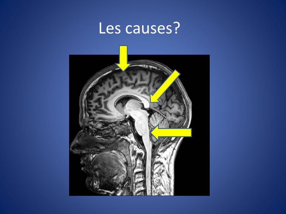 Les causes système d activation réticulaire: thalamus, hypothalamus, tronc cérébral