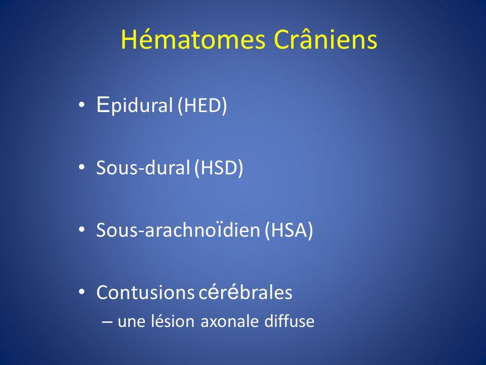Hématomes Crâniens Epidural (HED) Sous-dural (HSD)