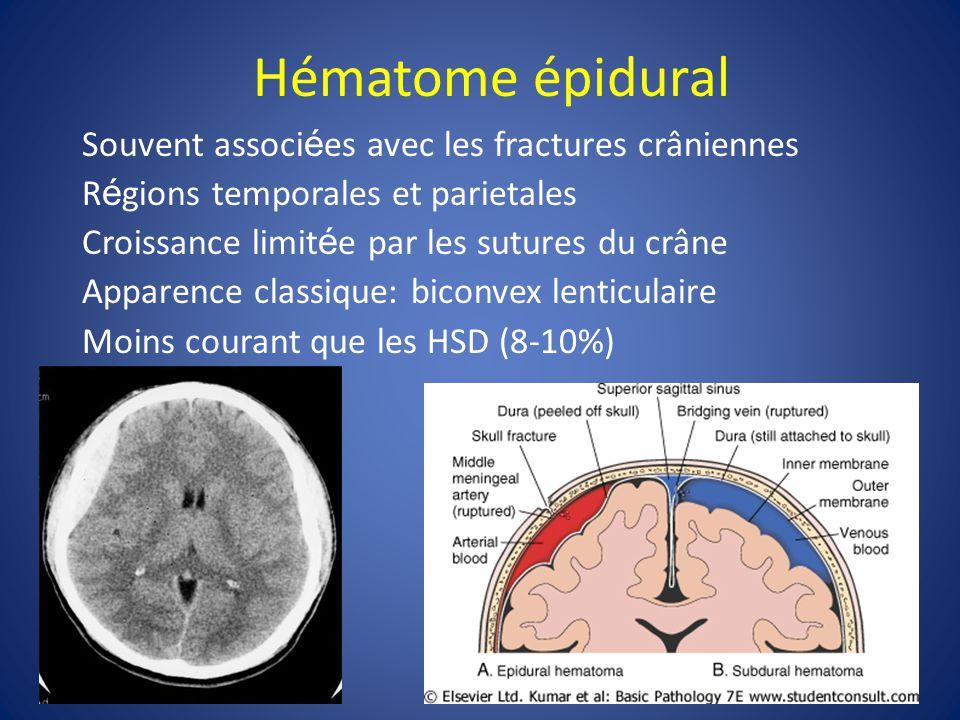 Hématome épidural Souvent associées avec les fractures crâniennes