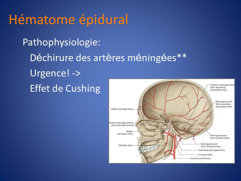 Hématome épidural Pathophysiologie: Déchirure des artères méningées**
