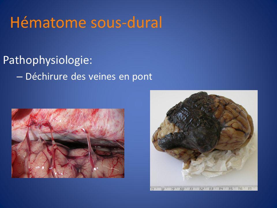 Hématome sous-dural Pathophysiologie: Déchirure des veines en pont 21