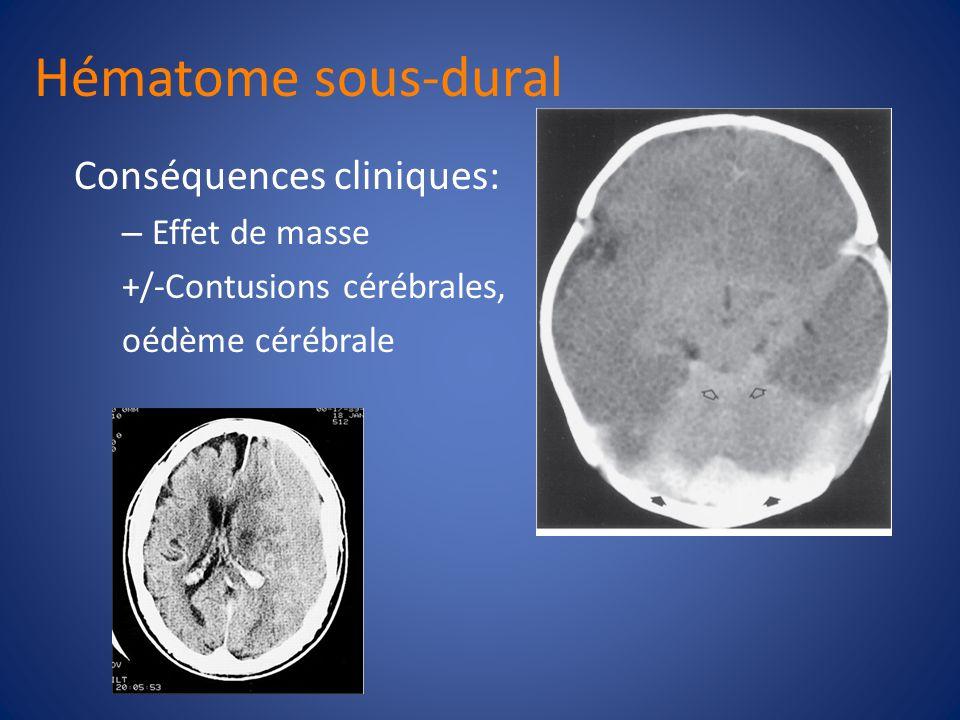 Hématome sous-dural Conséquences cliniques: Effet de masse