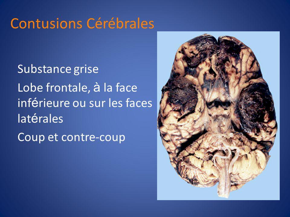 Contusions Cérébrales