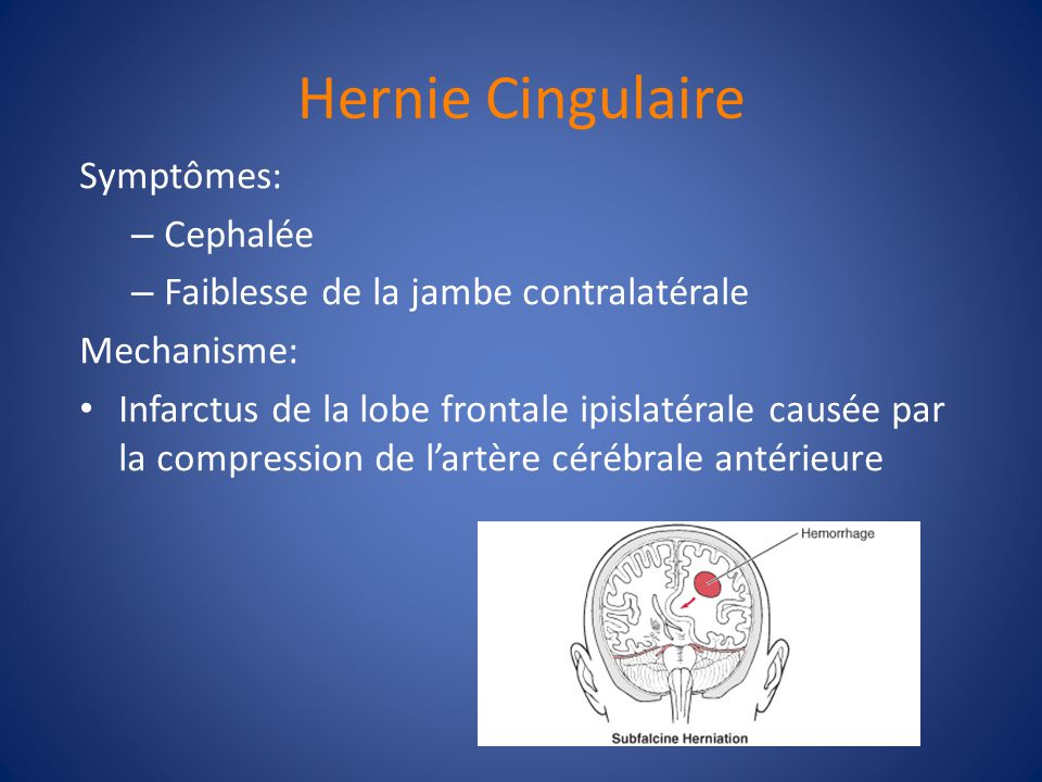Hernie Cingulaire Symptômes: Cephalée