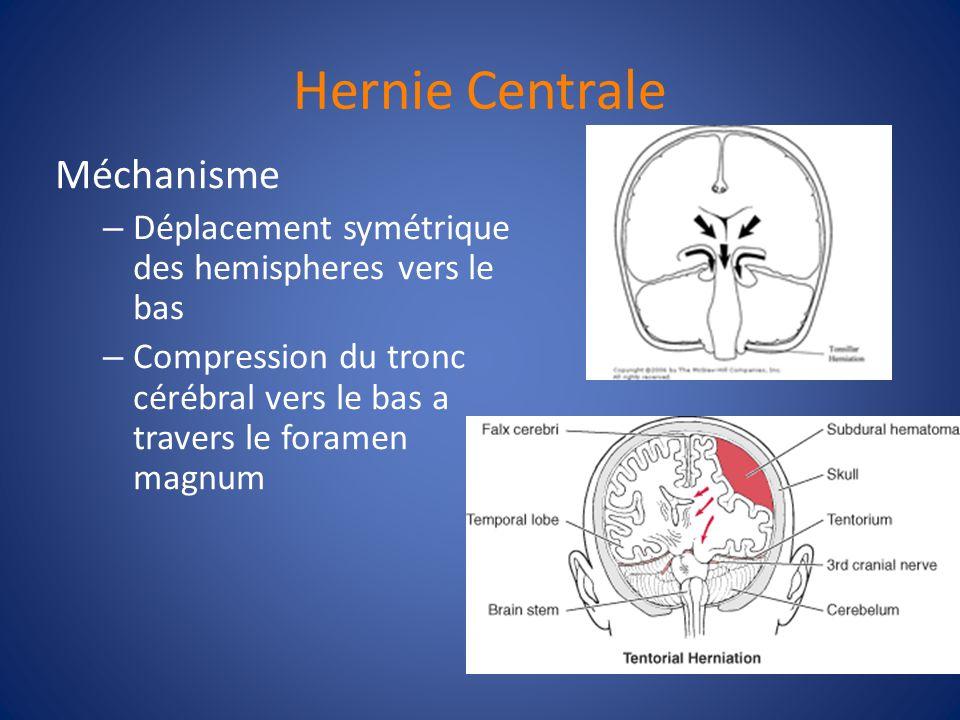 Hernie Centrale Méchanisme