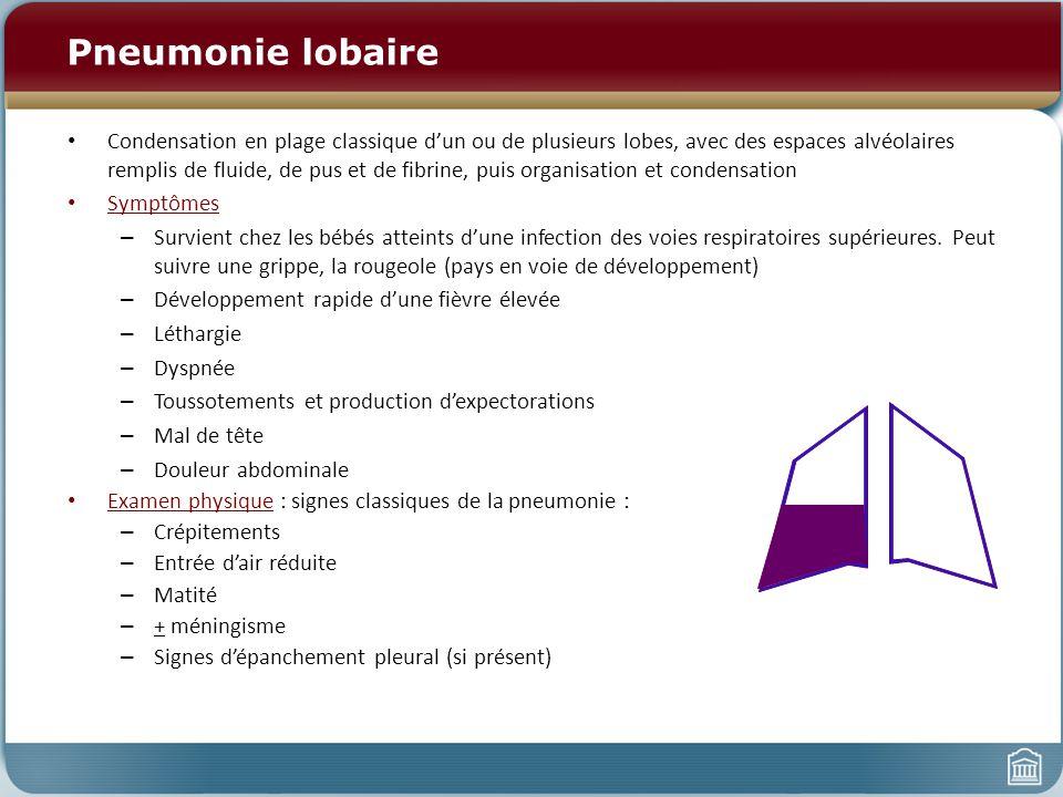 Pneumonie lobaire