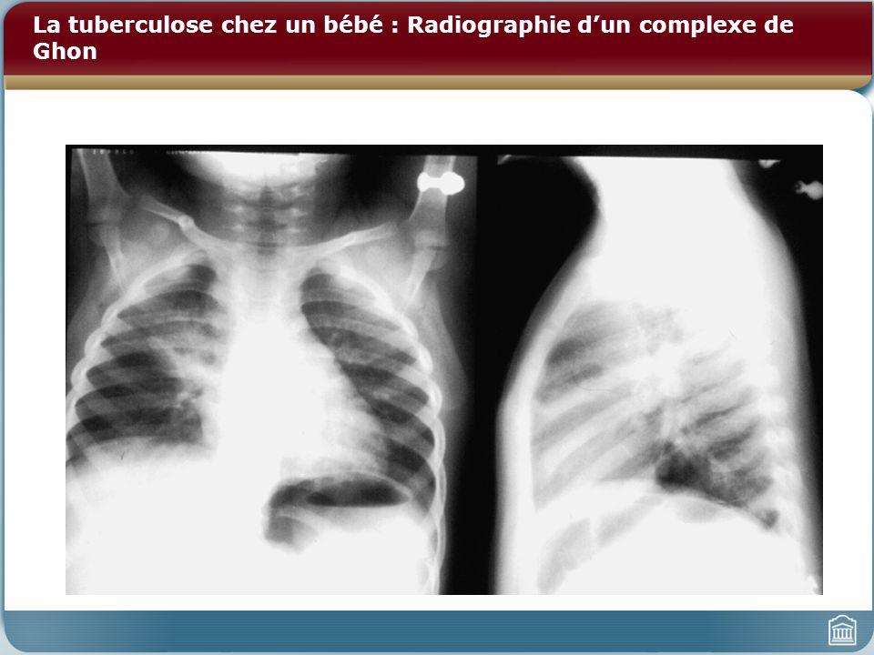 La tuberculose chez un bébé : Radiographie d'un complexe de Ghon