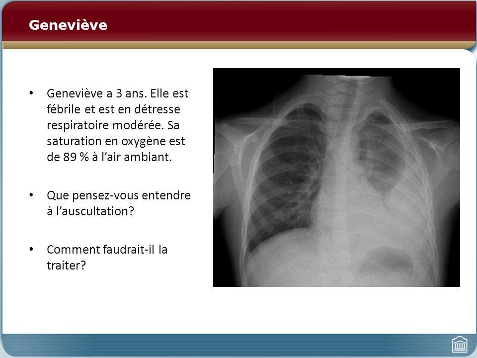 Geneviève Geneviève a 3 ans. Elle est fébrile et est en détresse respiratoire modérée. Sa saturation en oxygène est de 89 % à l'air ambiant.