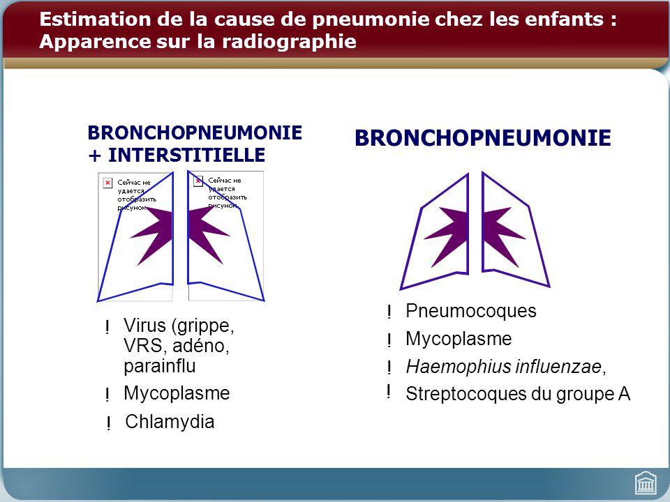 Estimation de la cause de pneumonie chez les enfants : Apparence sur la radiographie