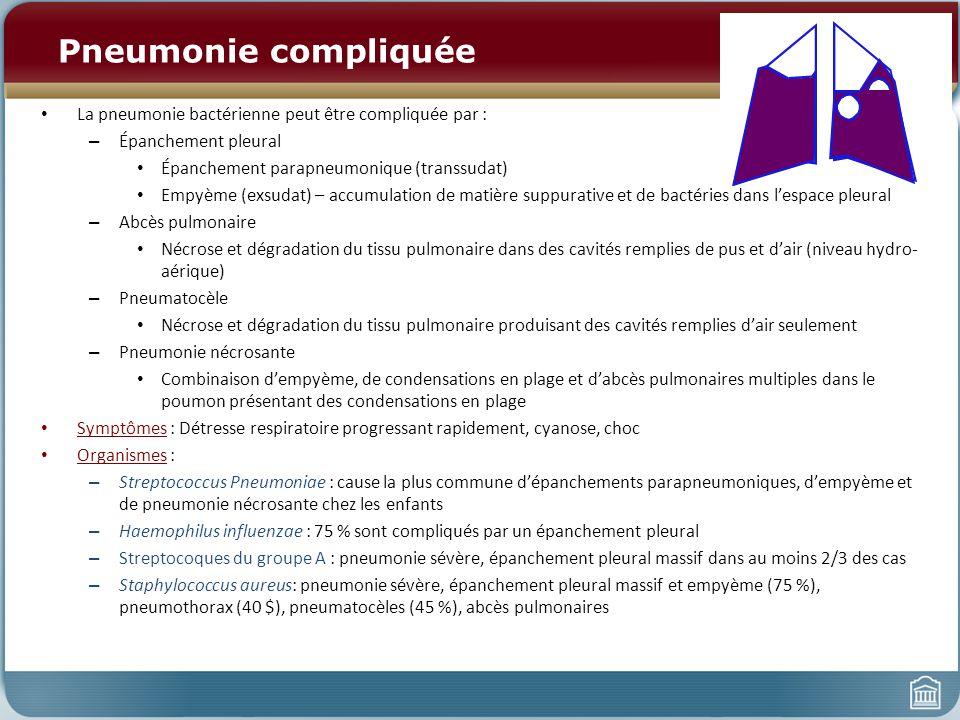 Pneumonie compliquée La pneumonie bactérienne peut être compliquée par : Épanchement pleural. Épanchement parapneumonique (transsudat)