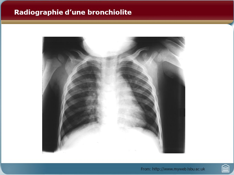 Radiographie d'une bronchiolite