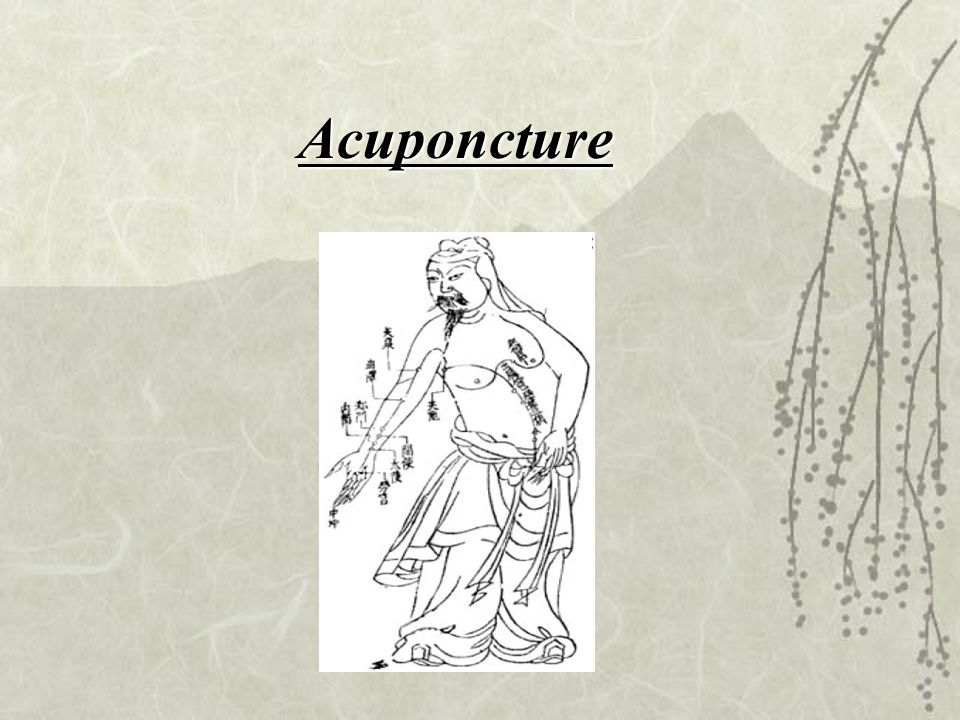 Acuponcture