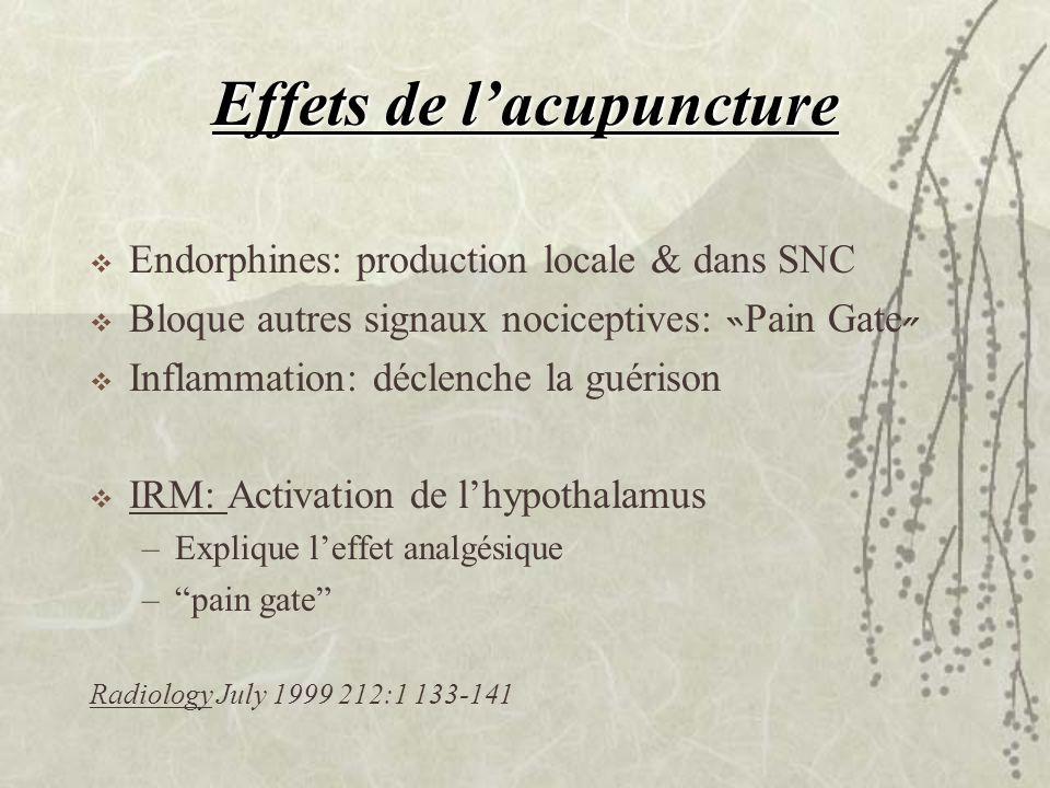 Effets de l'acupuncture