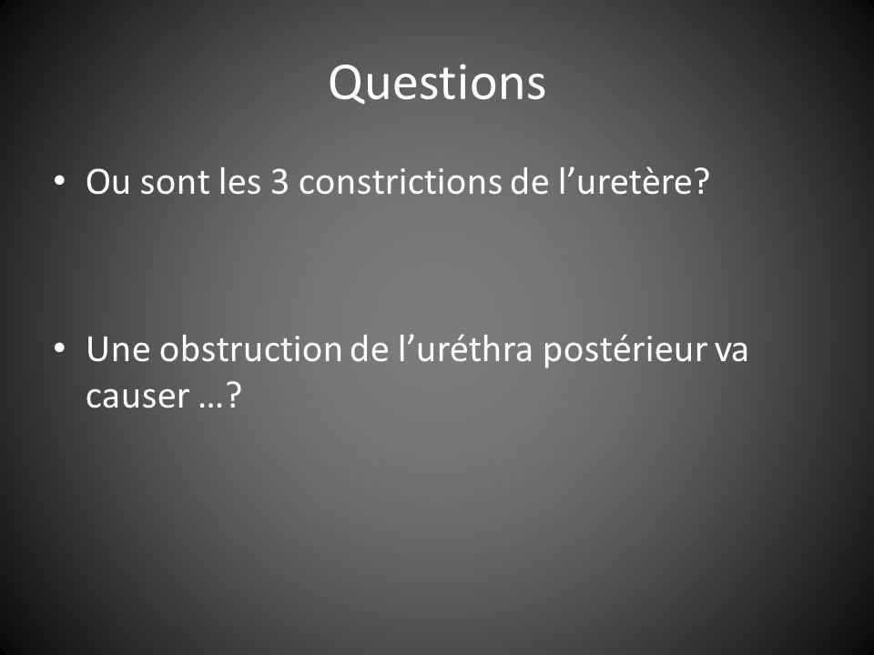 Questions Ou sont les 3 constrictions de l'uretère