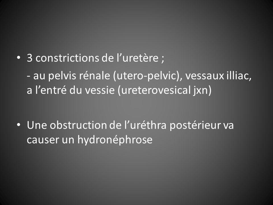 3 constrictions de l'uretère ;