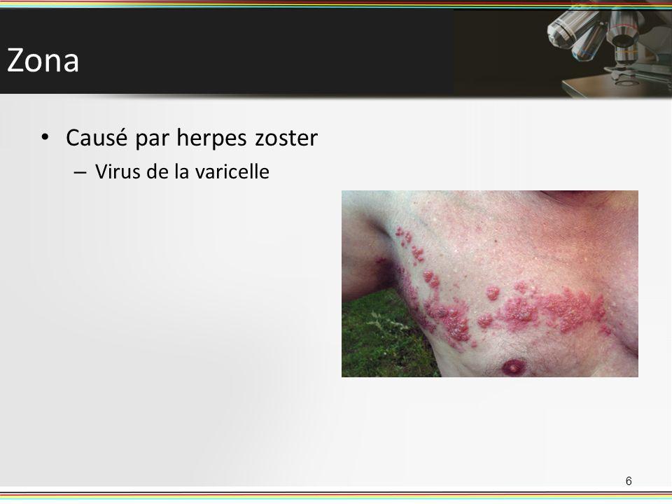 Zona Causé par herpes zoster Virus de la varicelle