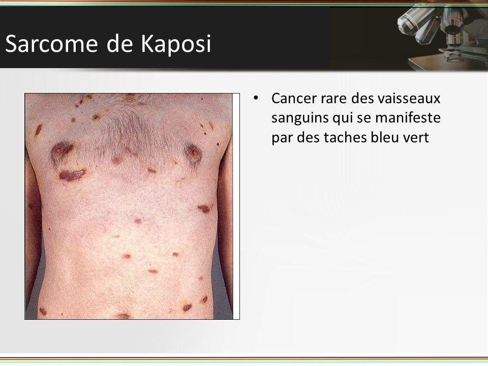 Sarcome de Kaposi Cancer rare des vaisseaux sanguins qui se manifeste par des taches bleu vert
