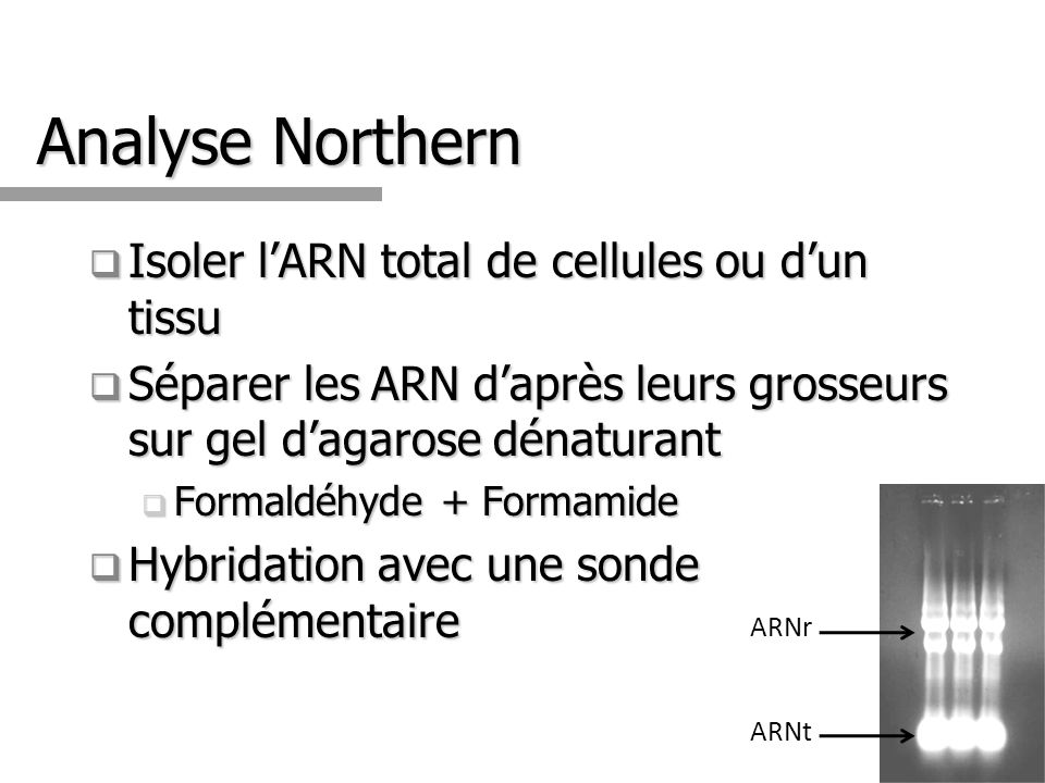 Analyse Northern Isoler l'ARN total de cellules ou d'un tissu