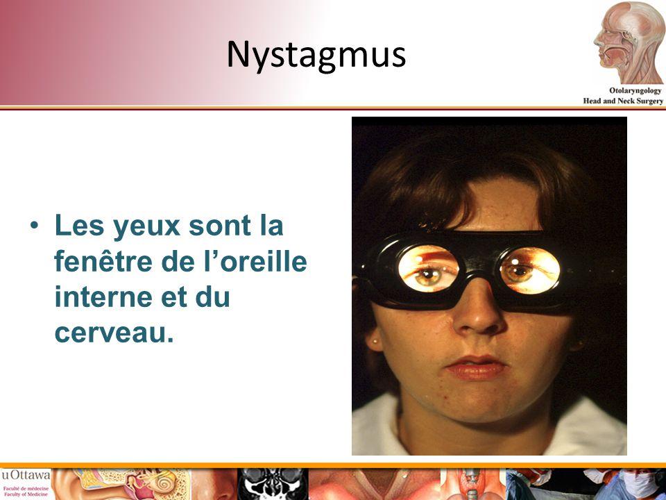 Nystagmus Les yeux sont la fenêtre de l'oreille interne et du cerveau.
