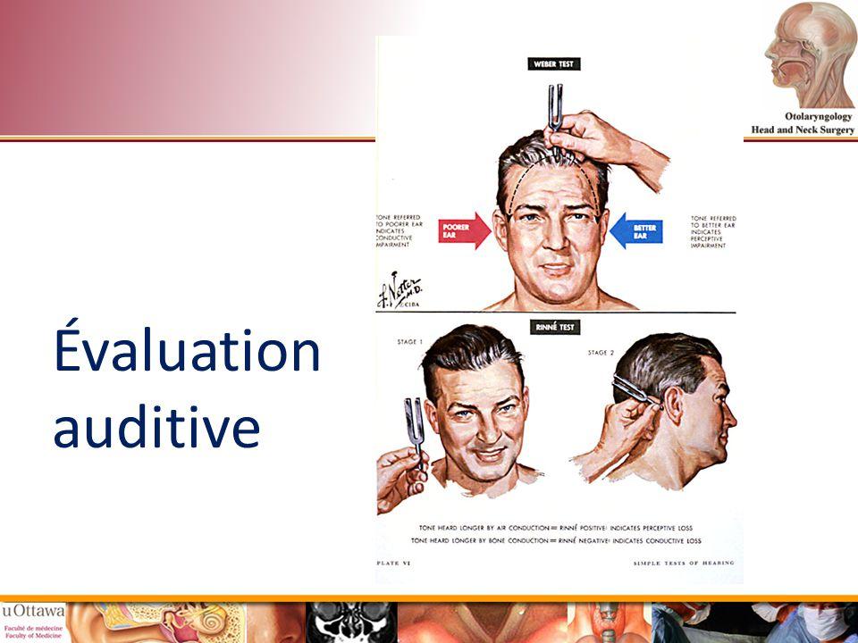 Évaluation auditive