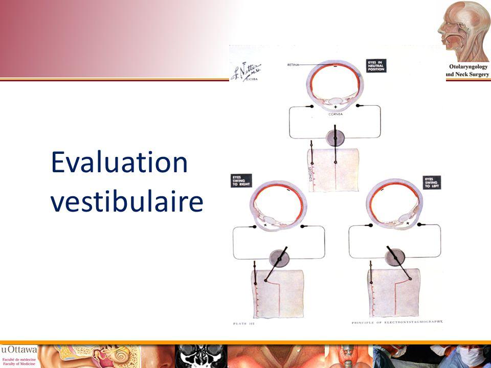 Evaluation vestibulaire