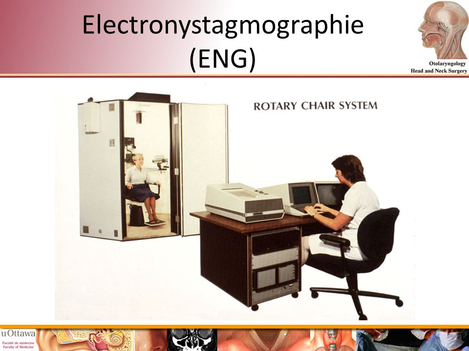Electronystagmographie (ENG)
