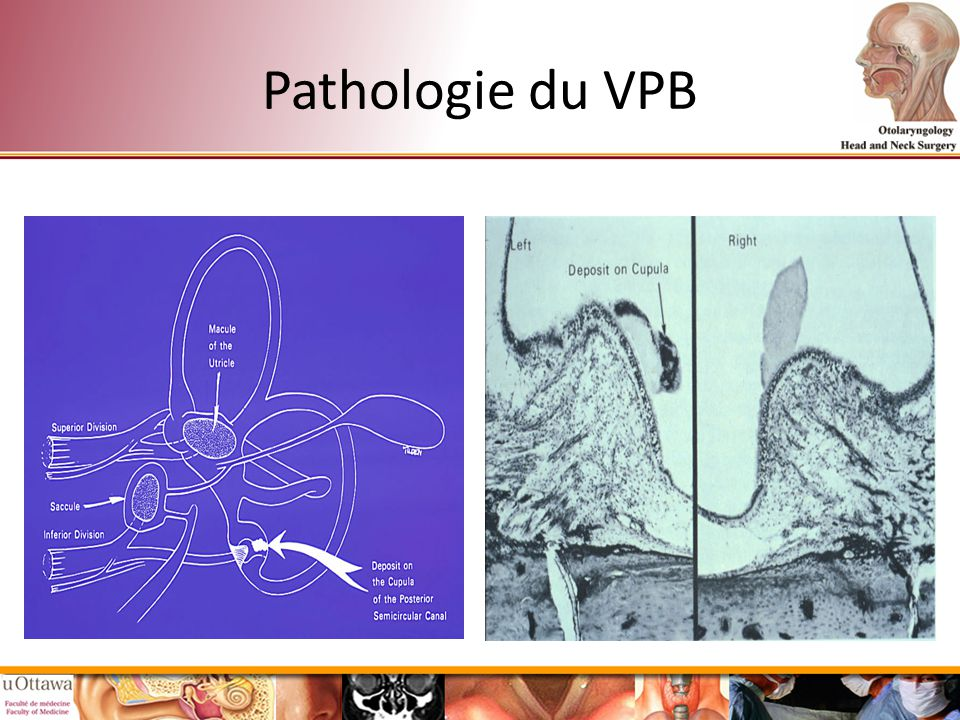 Pathologie du VPB