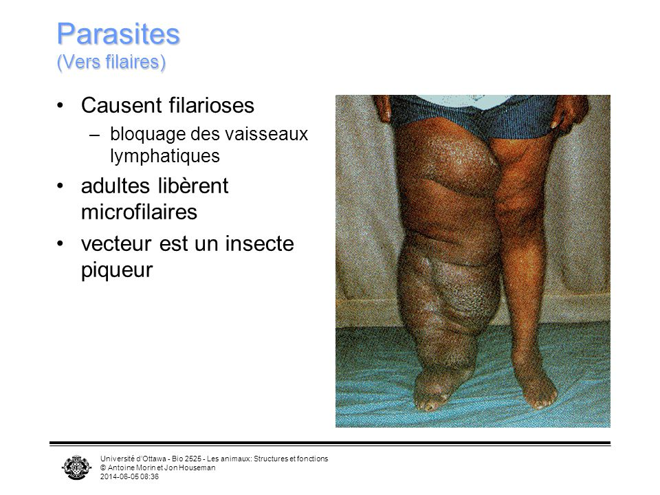 Parasites (Vers filaires)
