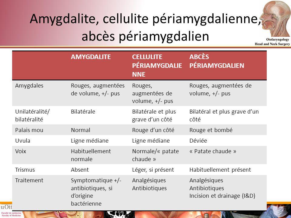 Amygdalite, cellulite périamygdalienne, abcès périamygdalien