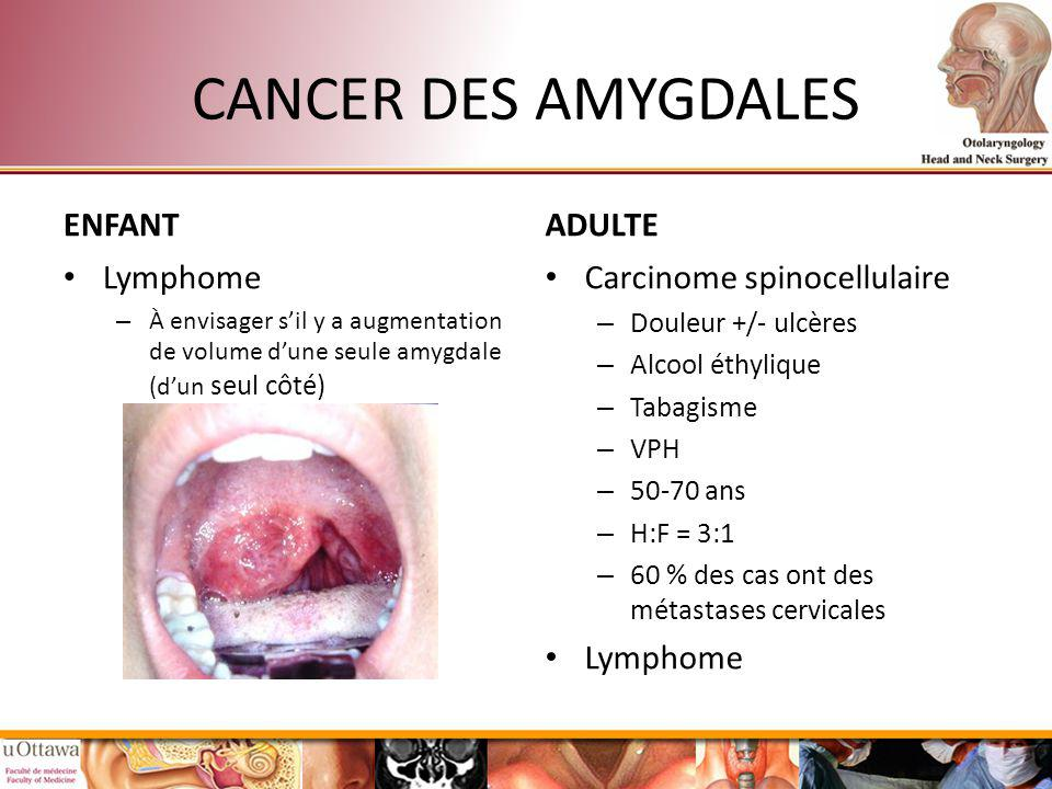 CANCER DES AMYGDALES ENFANT ADULTE Lymphome Carcinome spinocellulaire