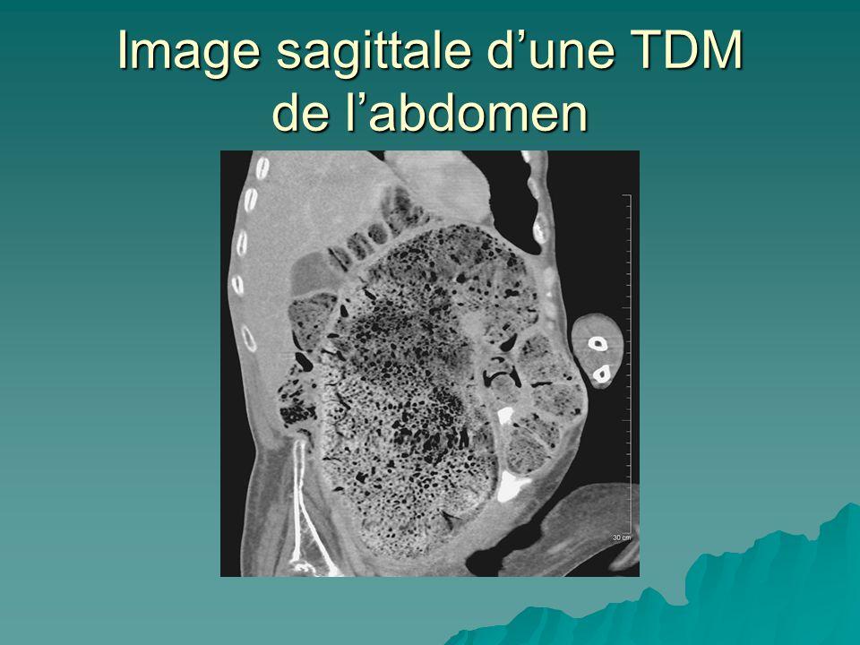 Image sagittale d'une TDM de l'abdomen