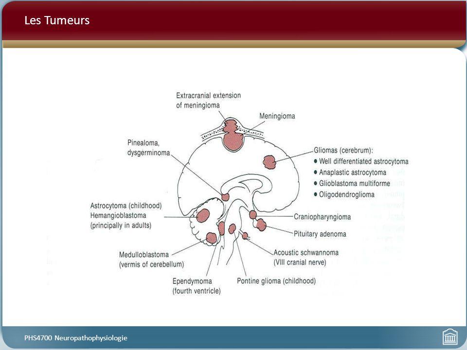 Les Tumeurs