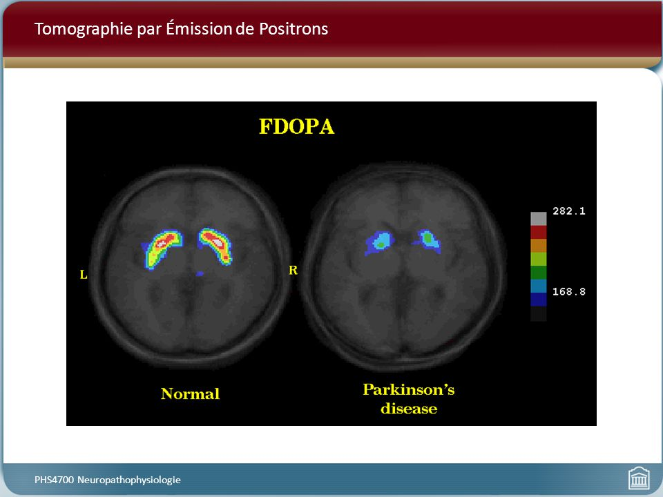 Tomographie par Émission de Positrons