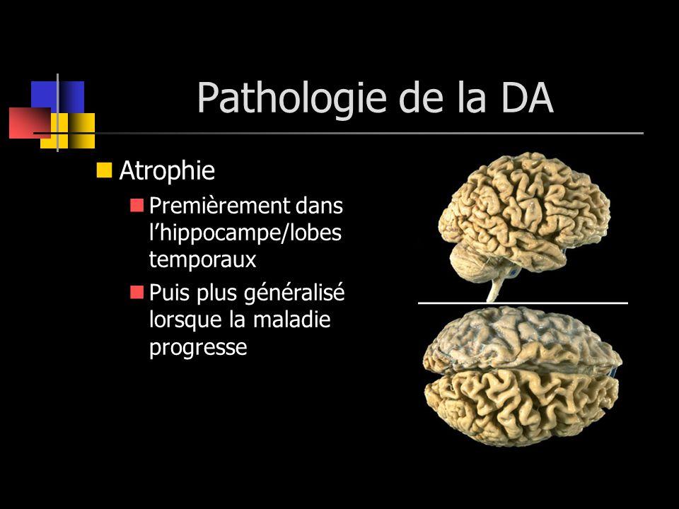 Pathologie de la DA Atrophie