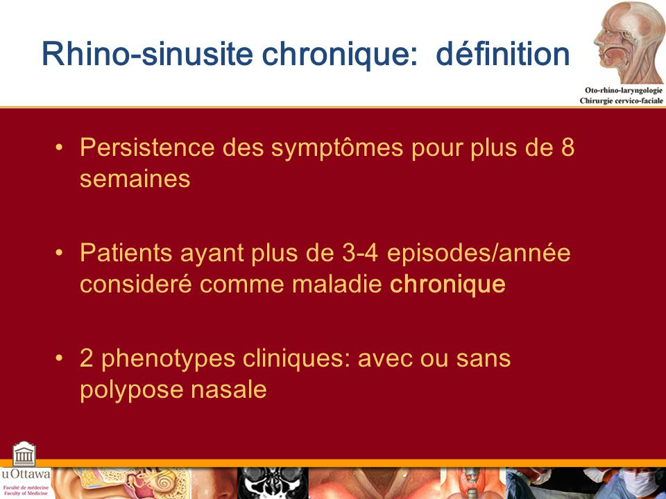 Rhino-sinusite chronique: définition