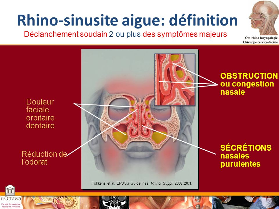 Rhino-sinusite aigue: définition