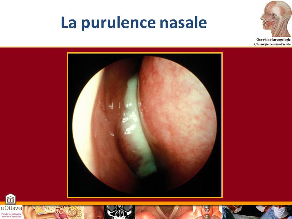 La purulence nasale Cette diapositive montre une vue rhinoscopique chez un patient qui présente un écoulement nasal purulent.