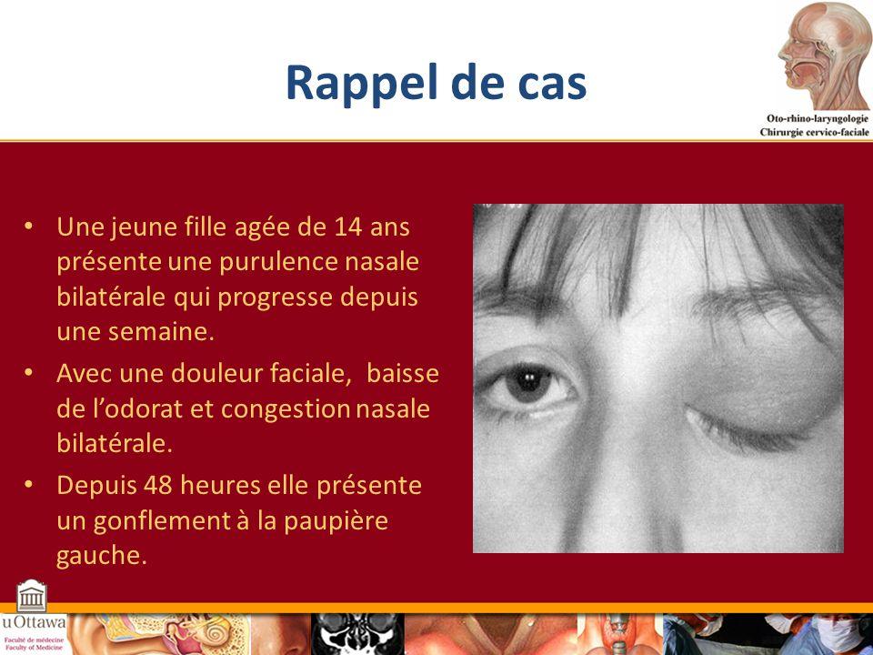Rappel de cas Une jeune fille agée de 14 ans présente une purulence nasale bilatérale qui progresse depuis une semaine.