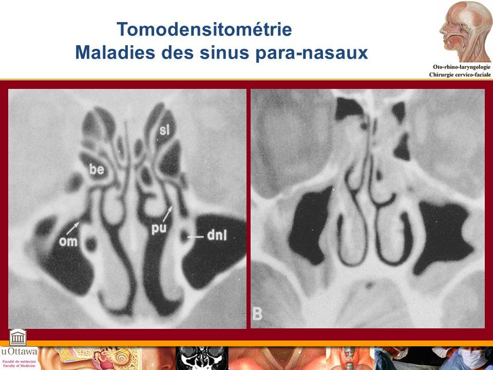 Maladies des sinus para-nasaux