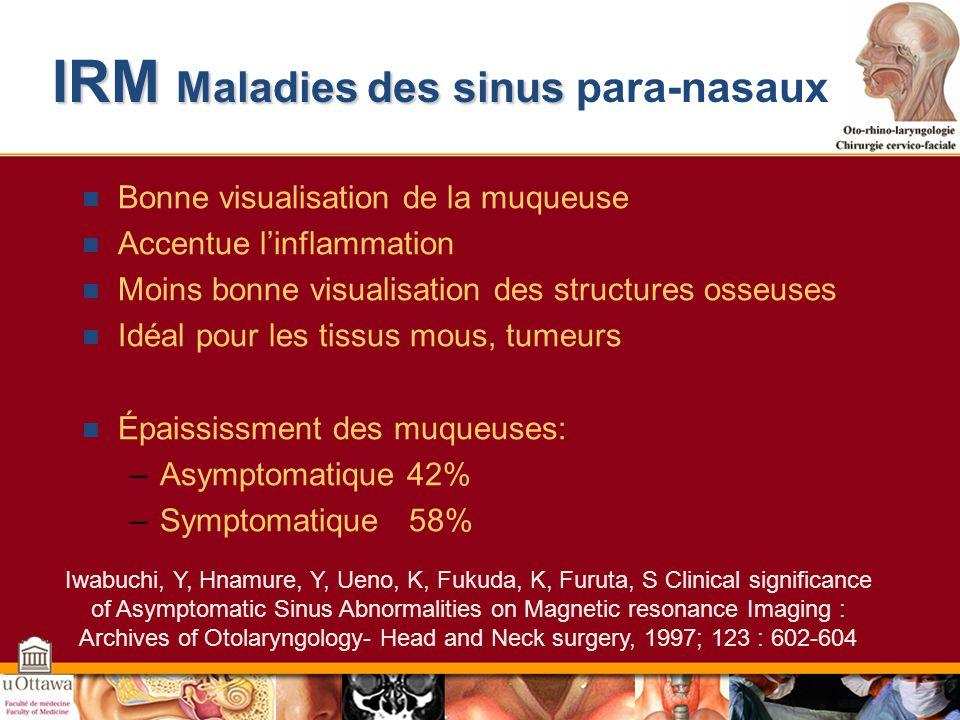 IRM Maladies des sinus para-nasaux
