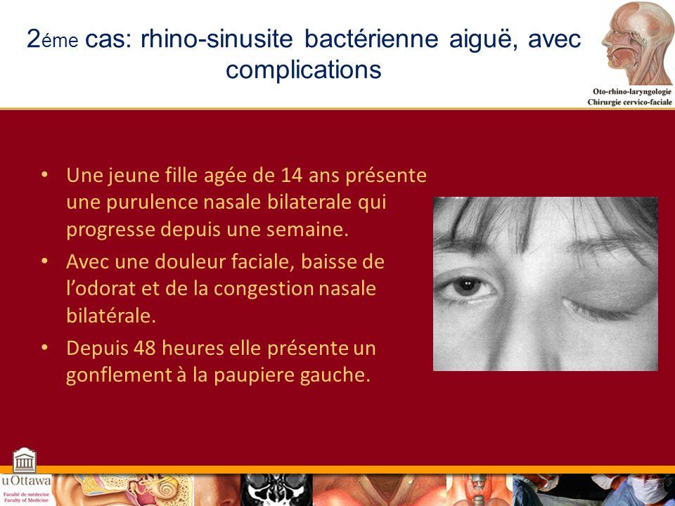 2éme cas: rhino-sinusite bactérienne aiguë, avec complications