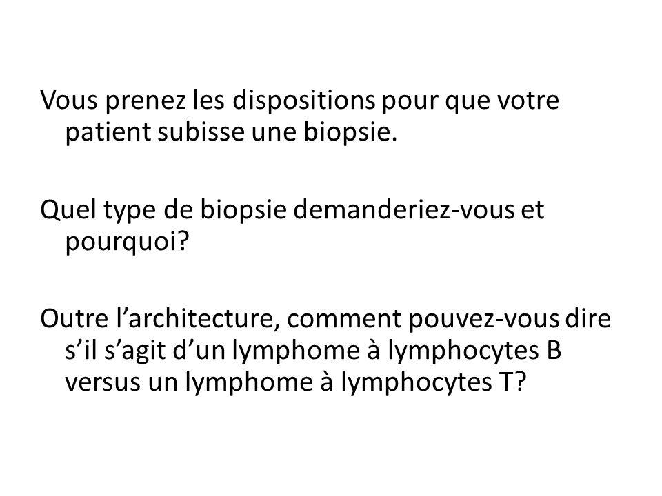 Quel type de biopsie demanderiez-vous et pourquoi
