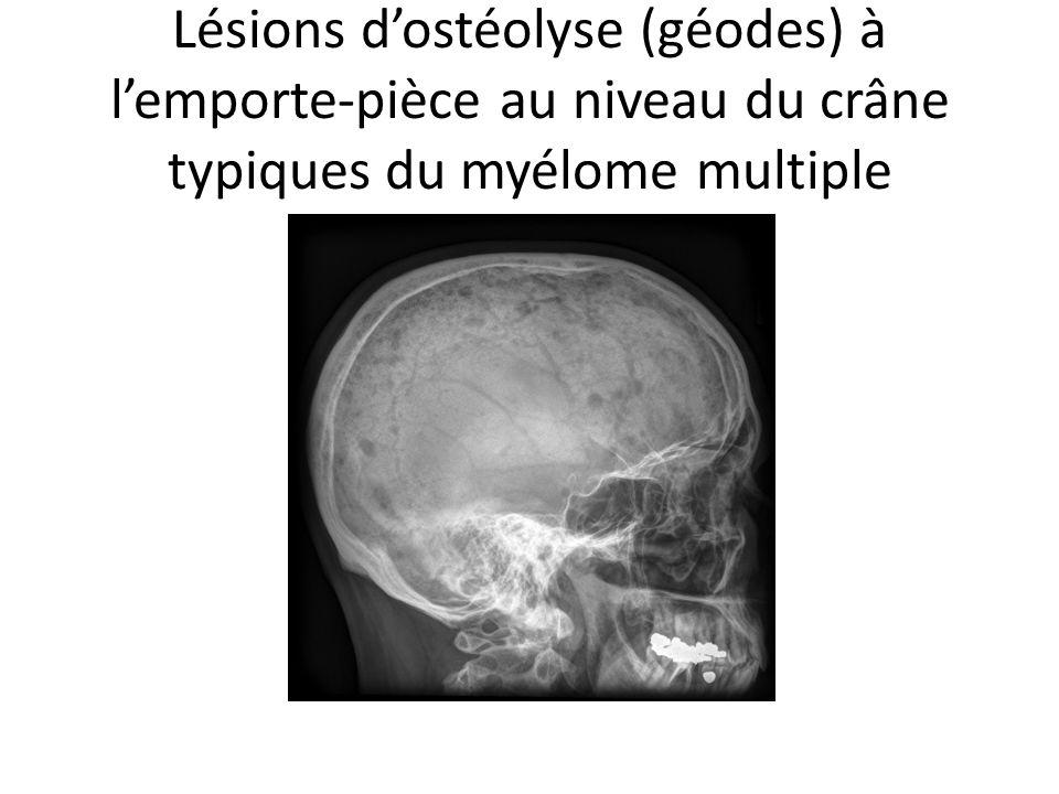 Lésions d'ostéolyse (géodes) à l'emporte-pièce au niveau du crâne typiques du myélome multiple