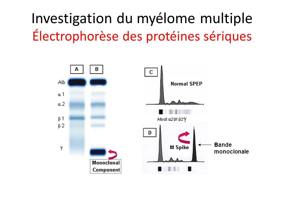 Investigation du myélome multiple Électrophorèse des protéines sériques