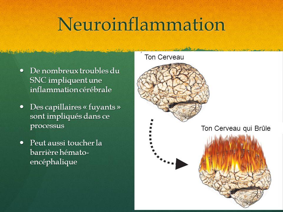 Neuroinflammation Ton Cerveau. De nombreux troubles du SNC impliquent une inflammation cérébrale.