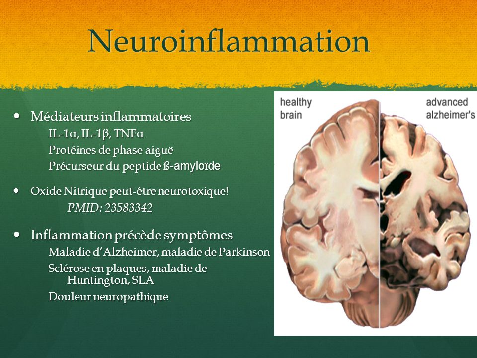 Neuroinflammation Médiateurs inflammatoires