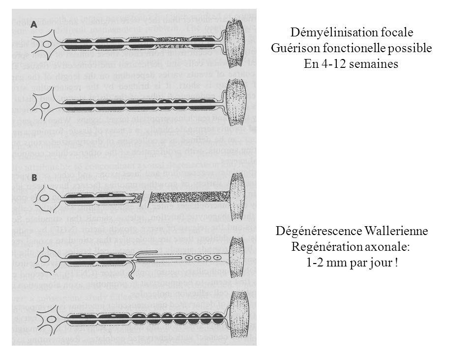 Démyélinisation focale Guérison fonctionelle possible En 4-12 semaines