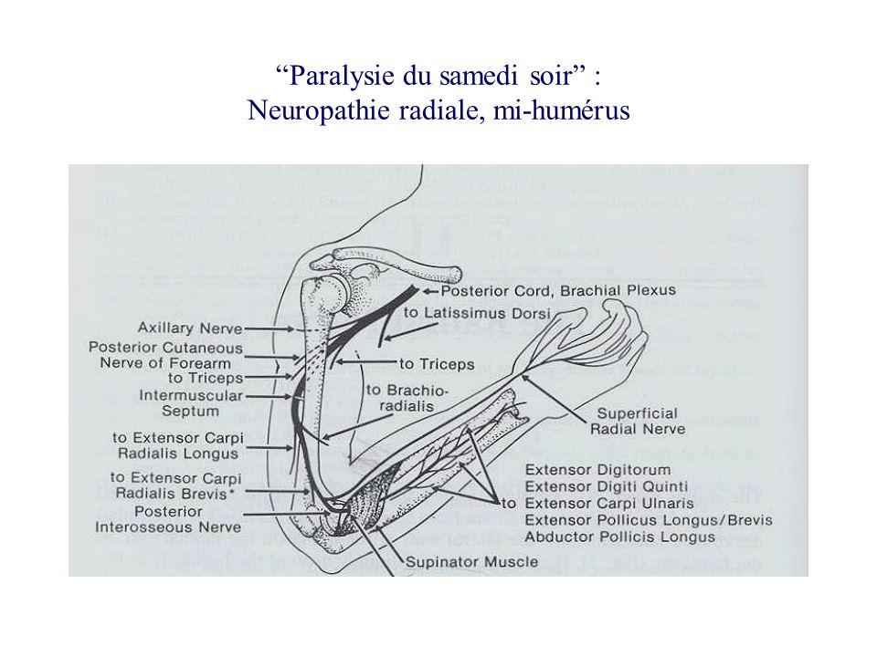 Paralysie du samedi soir : Neuropathie radiale, mi-humérus