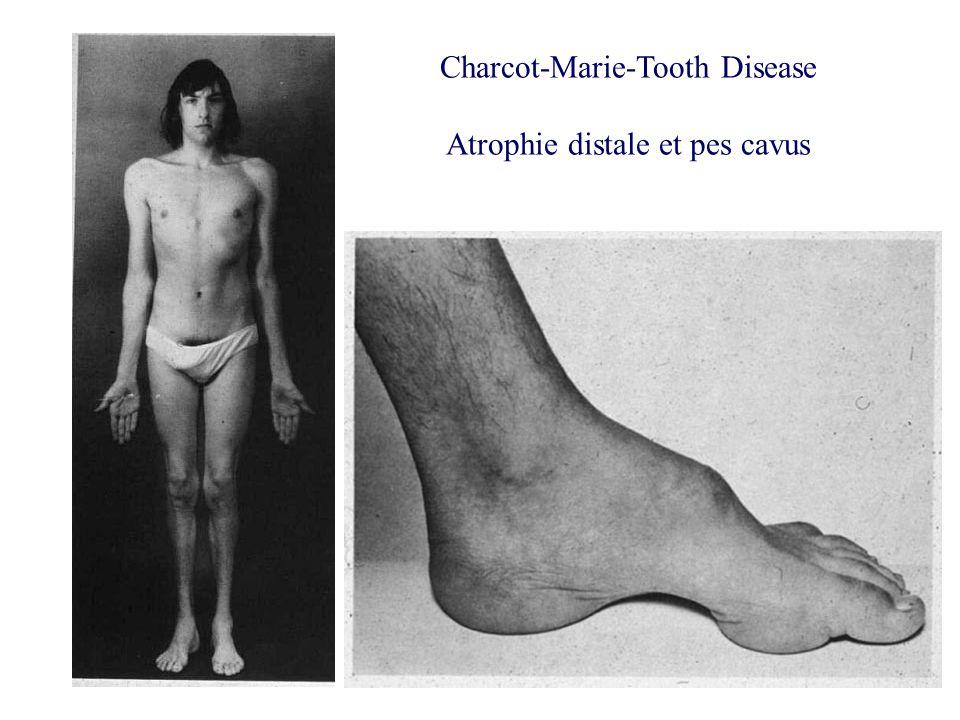 Charcot-Marie-Tooth Disease Atrophie distale et pes cavus