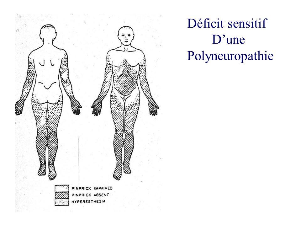 Déficit sensitif D'une Polyneuropathie